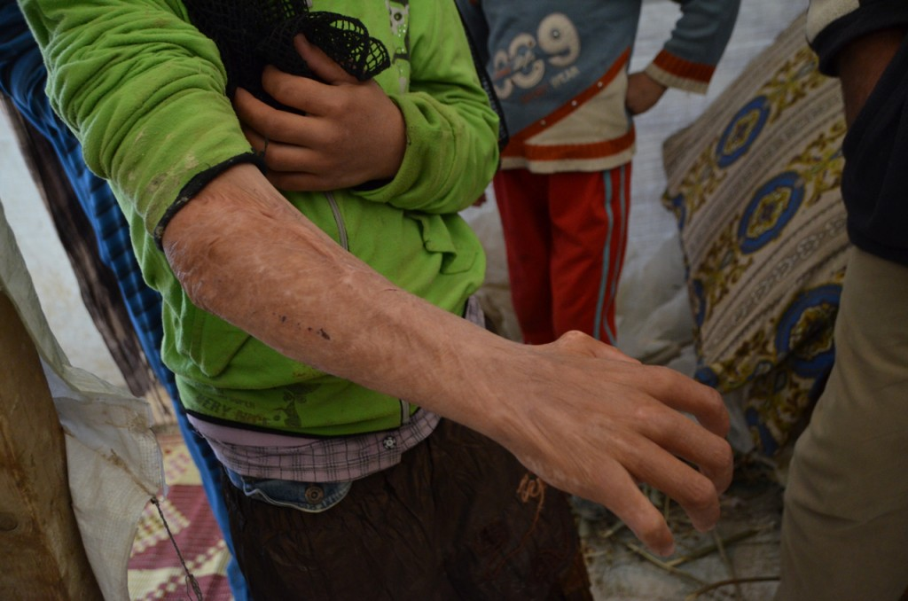 Syrian refugee Reina's disfigured arm (Photo: Simon Roughneen)